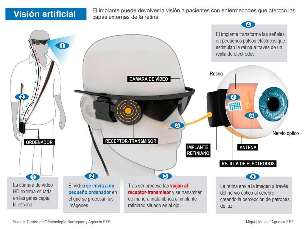 Ojo biónico: un implante puede devolver la visión