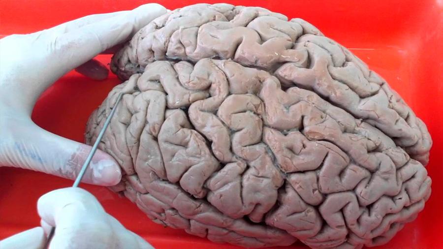 Cómo se forman los surcos que aumentan la superficie de la corteza cerebral