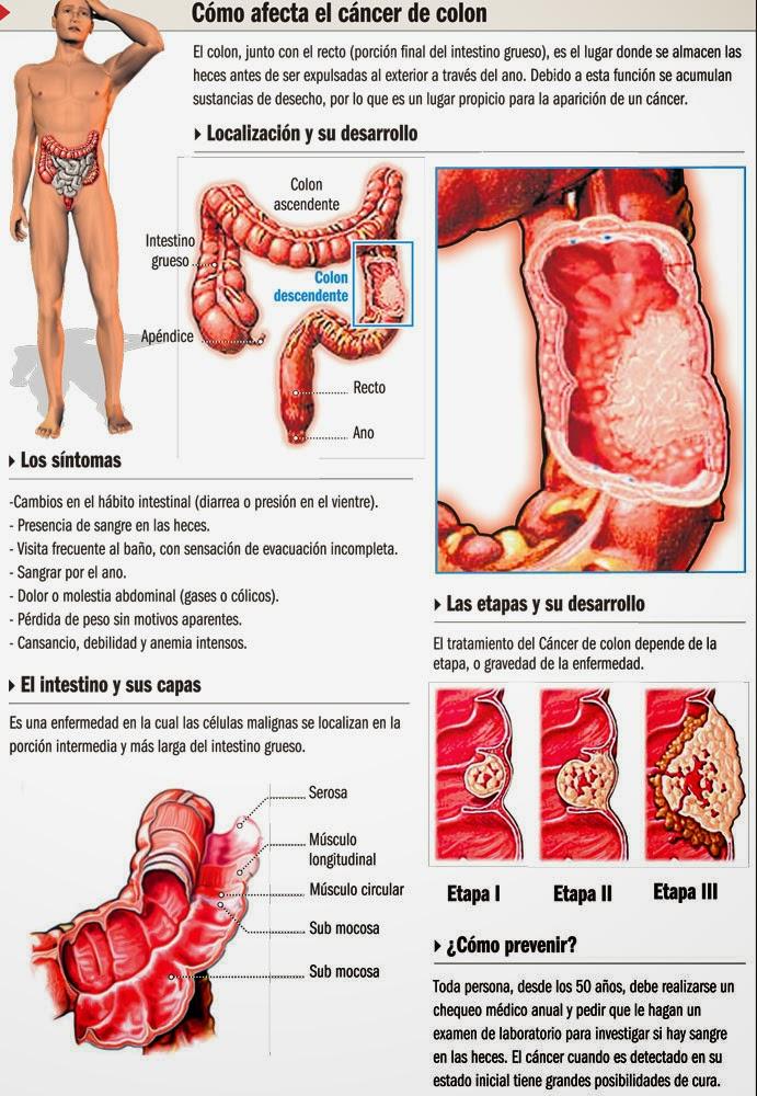 Cómo afecta el cáncer de colon