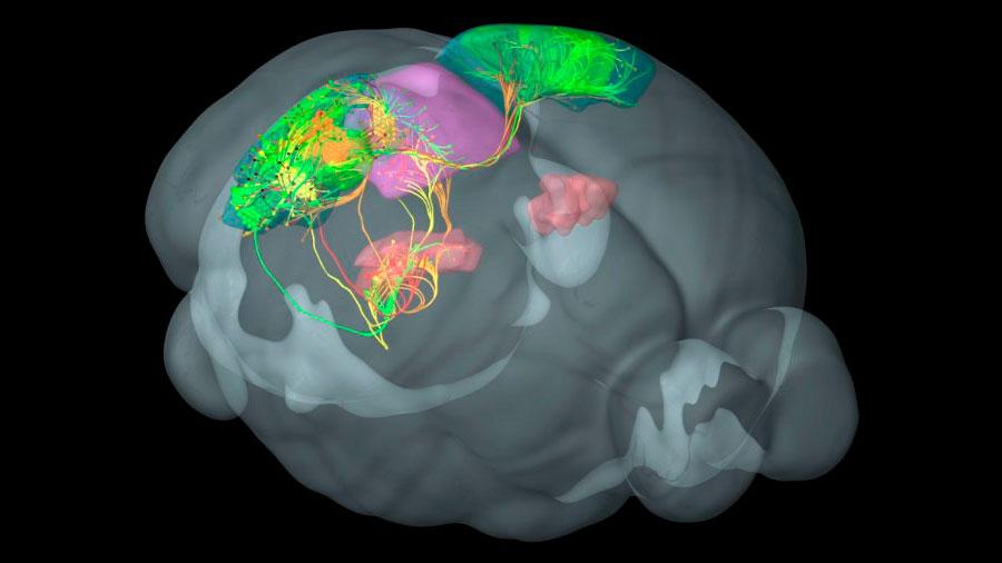 El mapa de las alteraciones cerebrales en los pacientes bipolares
