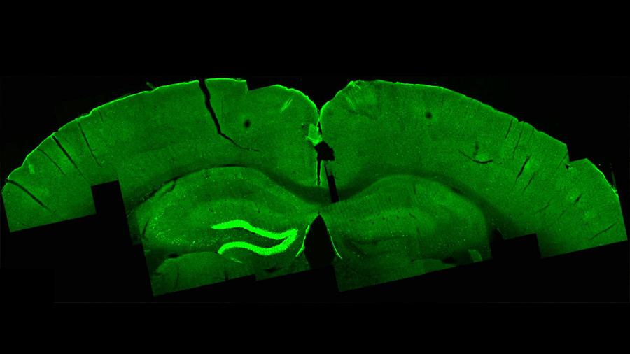 Una nueva técnica activa áreas profundas del cerebro desde el exterior