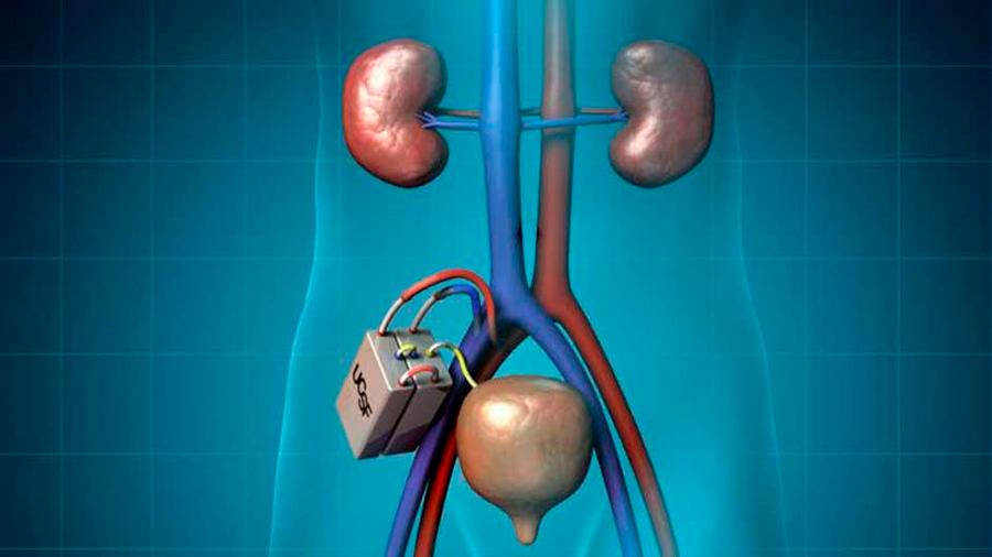 Desarrollan riñón artificial para evitar hemodiálisis