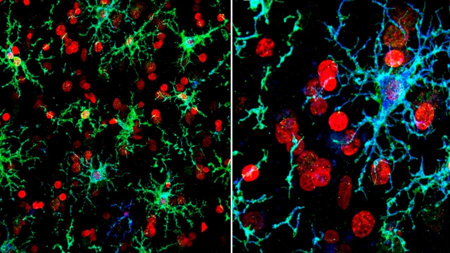 Transforman células cutáneas en células cerebrales humanas
