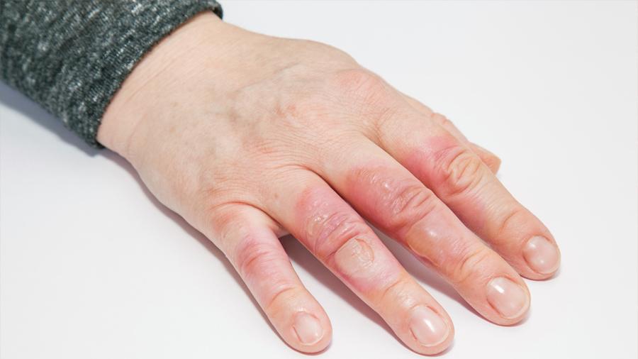 Magia Siglo XXI: la innovadora técnica que borra las cicatrices de la piel