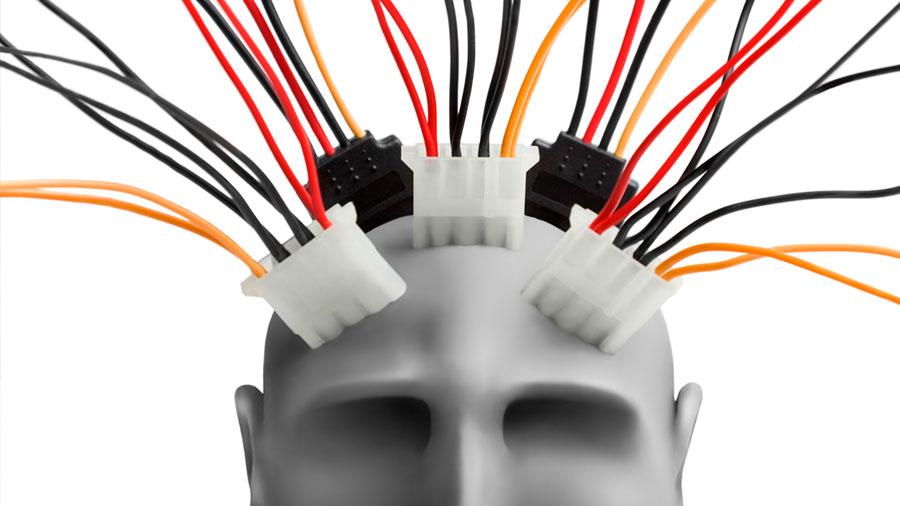 Combatir el Parkinson: la revolucionaria técnica con electrodos externos