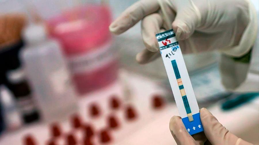 El genoma del VIH 1 y sus correlaciones