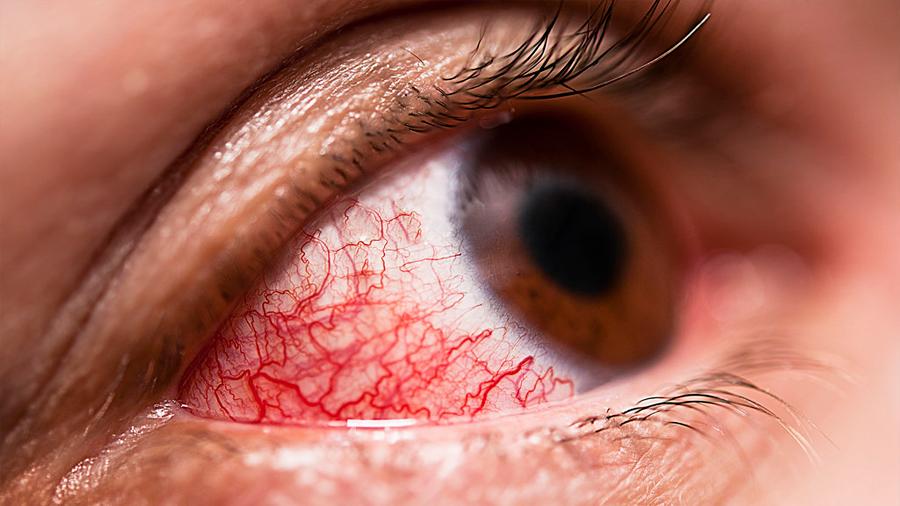 Lanzan tratamiento para una de las principales causas de ceguera prevenible enfermedad en los ojos