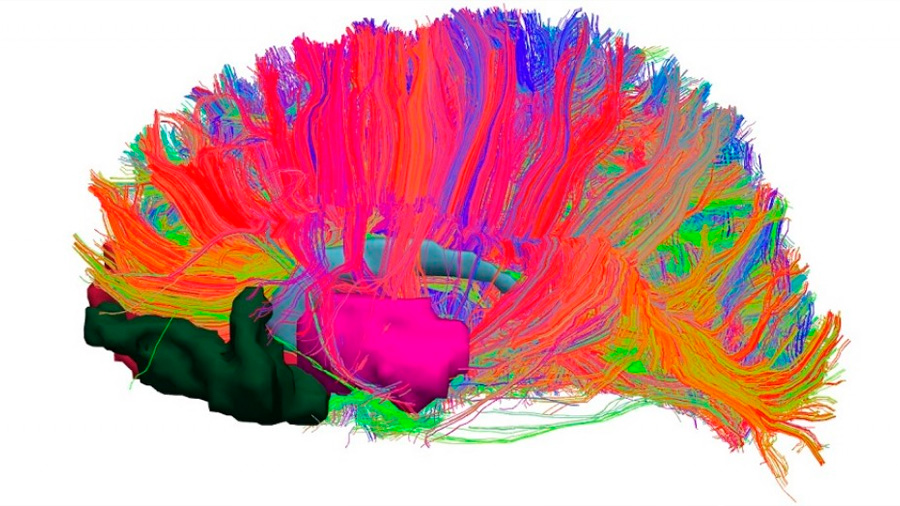 Los genes de la esquizofrenia protegen del alzhéimer, según un estudio