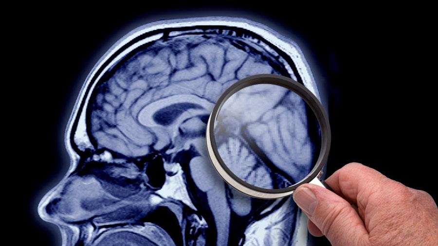 Investigan el envejecimiento cerebral para mejorar la calidad de vida de los mayores