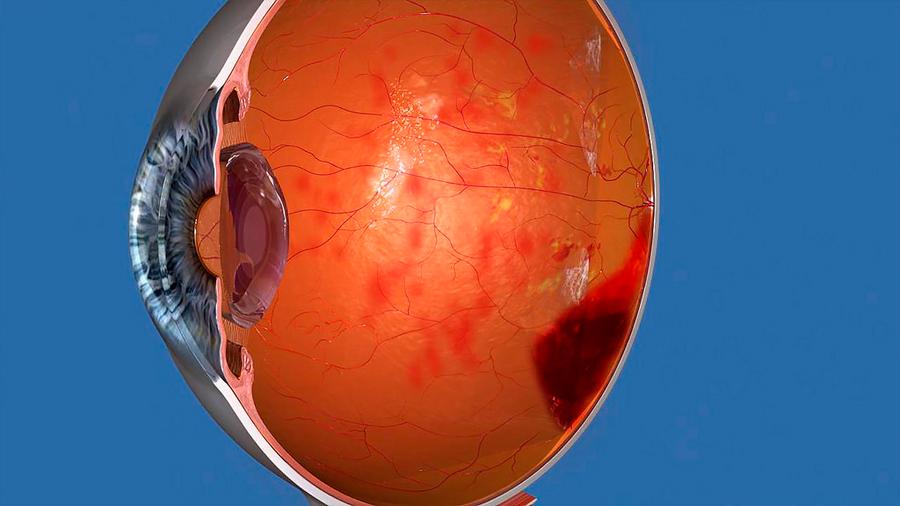 Incrementan los casos de ceguera por diabetes