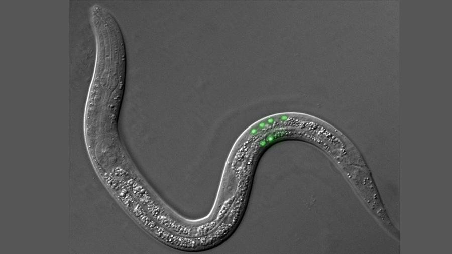 Las nanopartículas de óxido de hierro estresan a las células