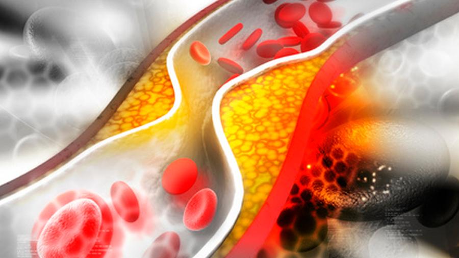 Sí, demasiado colesterol 'bueno' puede ser malo