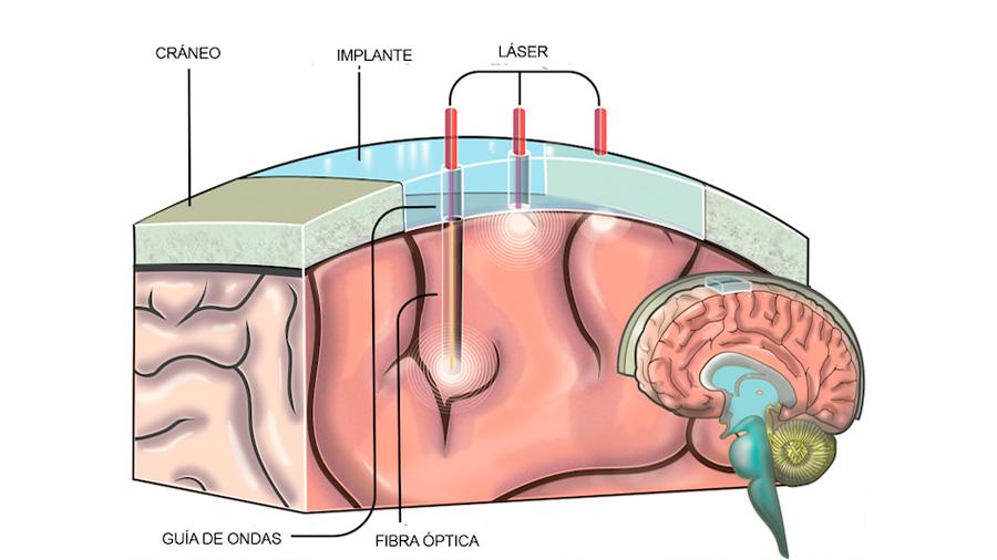 """Científicos mexicanos y estadounidenses crean implante que sirve como """"ventana al cerebro"""""""