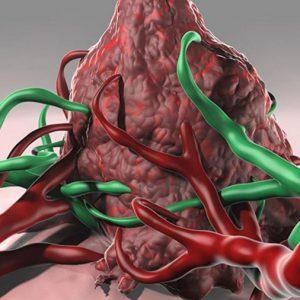 Así escapa el cáncer del sistema inmune