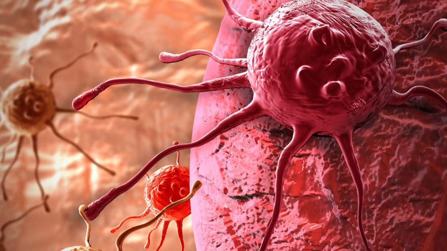 Descubren un nuevo síndrome genético que predispone al cáncer