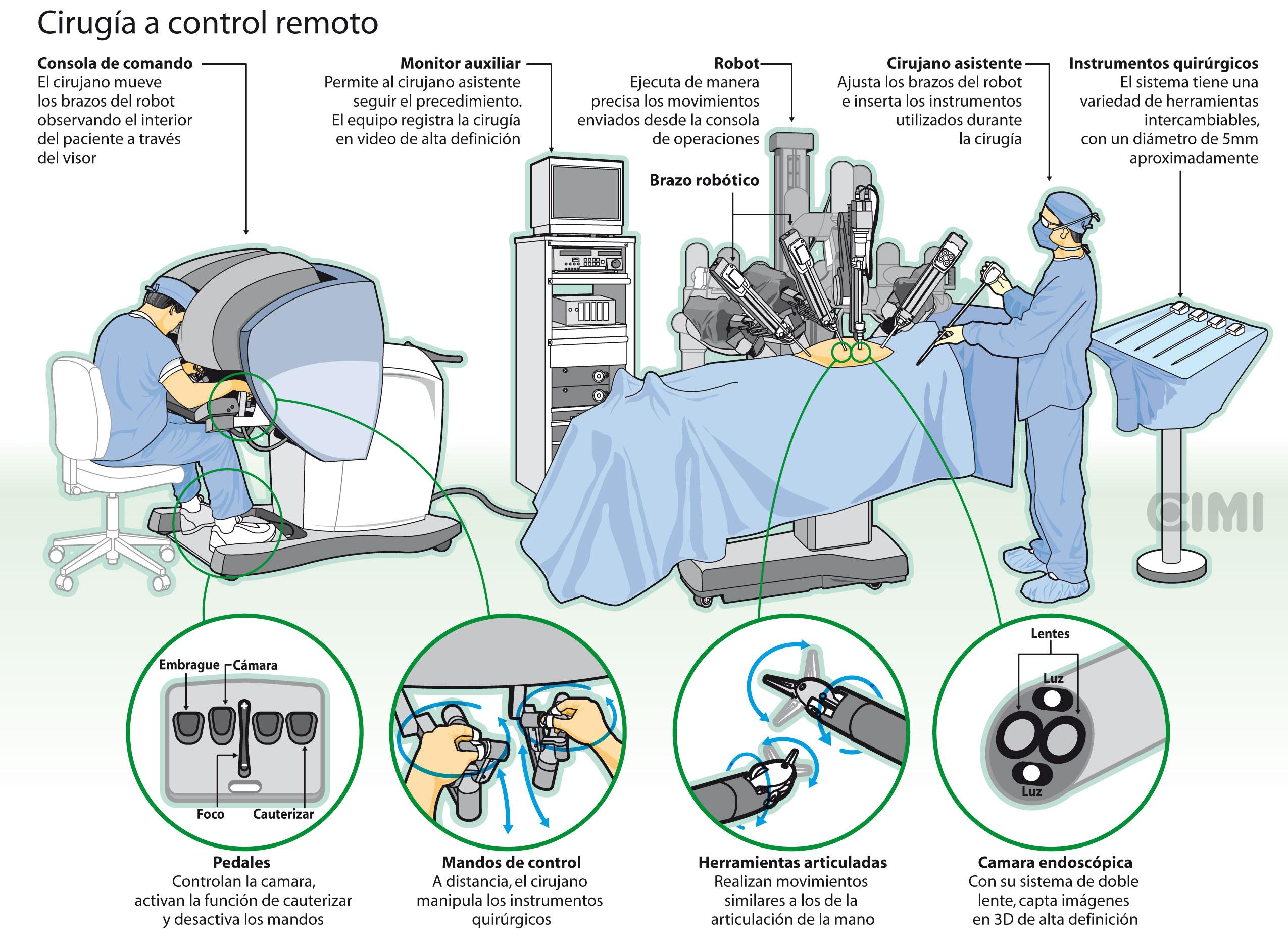 Cirugía a control remoto