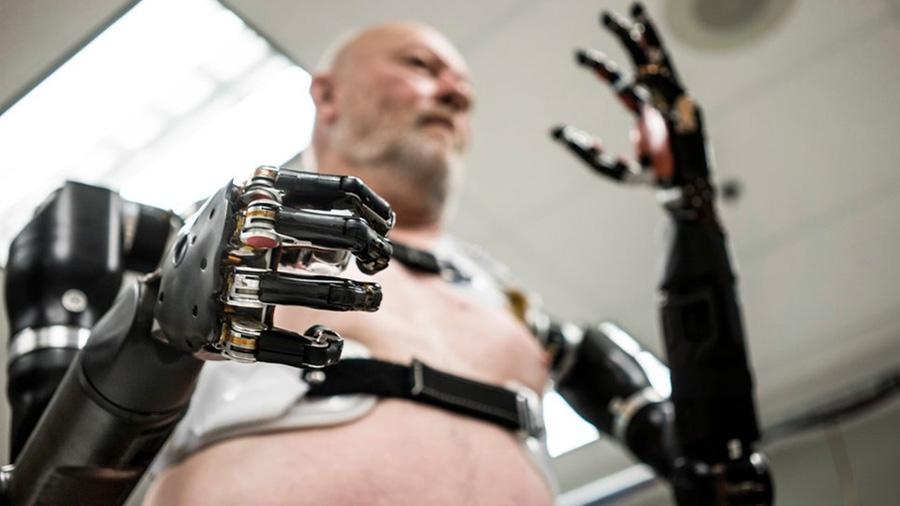 Hombre biónico: un discapacitado que ayuda a los científicos a crear prótesis robóticas