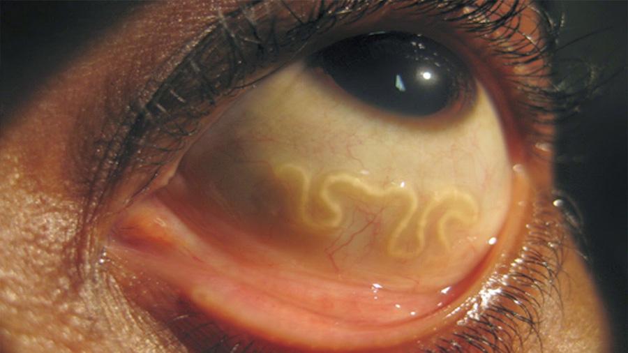 Este es el nuevo hogar de estos parásitos: tus ojos