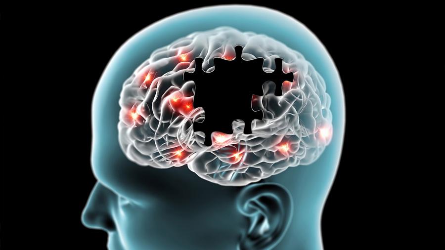 Identificado el origen de las alucinaciones visuales en el párkinson