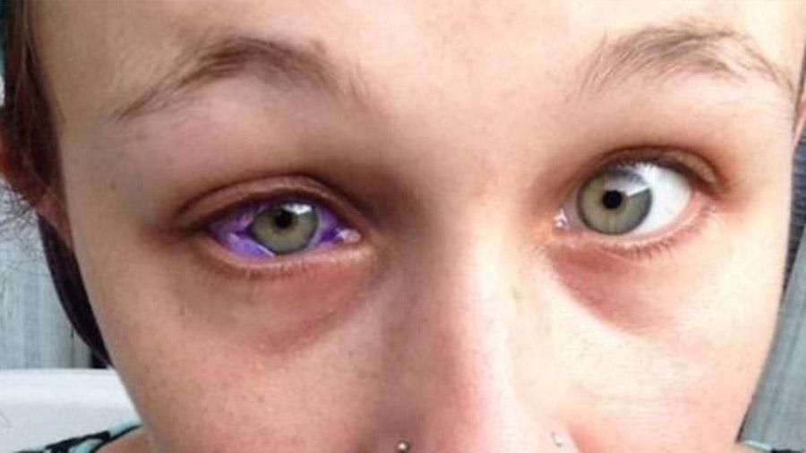 Una modelo canadiense demuestra lo mal que puede irte al tatuarte un ojo