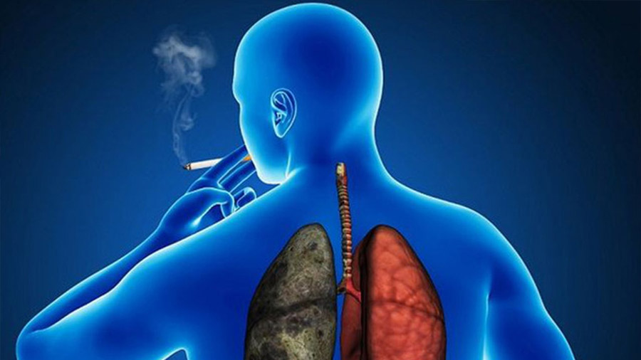 Las personas con VIH fumadoras son más propensas a morir por cáncer de pulmón que por VIH