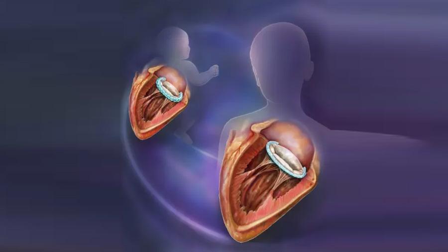 El implante quirúrgico que crece con el niño