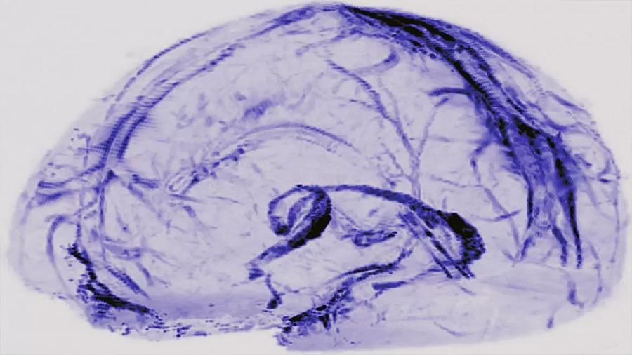 Descubren cómo el cerebro elimina sus desechos