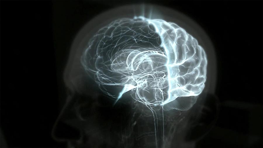 El increíble caso del hombre que lleva una vida normal sin el 90% de su cerebro