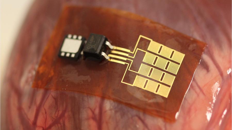 Sensores flexibles pueden detectar movimiento en el tracto GI