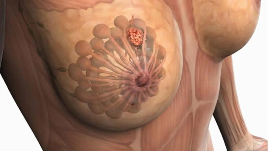 La ciencia contra el cáncer de mama