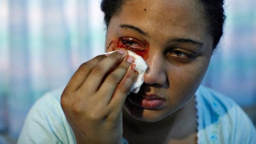 El extraño caso de la joven italiana que suda sangre por las manos y la cara