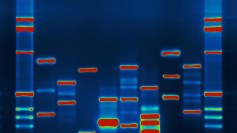 Desarrollan un algoritmo capaz de reprogramar el modelo de una célula para que se convierta en cualquier otra