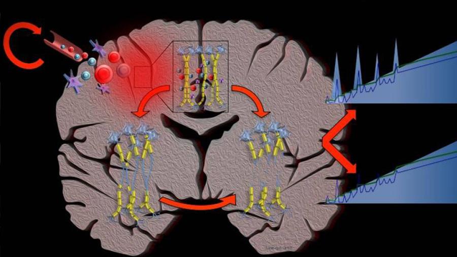 La computación confirma el grave pronóstico de la esclerosis múltiple