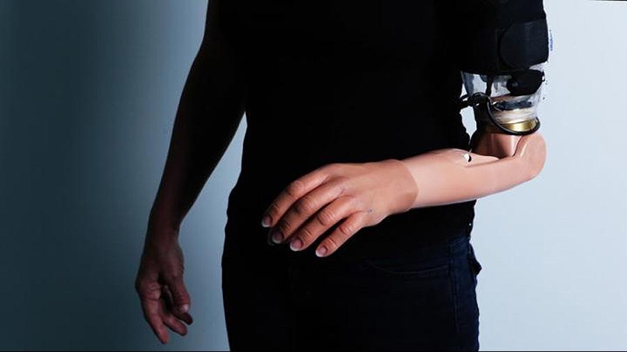 Las conexiones cerebrales de personas amputadas reconocen las prótesis robóticas