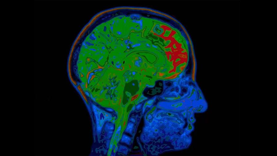 Investigadores descubren la causa de la sensibilidad al oxígeno del cerebro