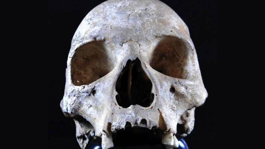 Descubren la posible causa de una epidemia de lepra en la Inglaterra medieval