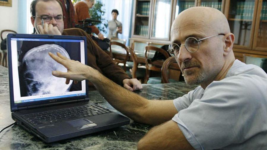 El doctor a cargo del primer trasplante de cabeza niega que existan dilemas éticos