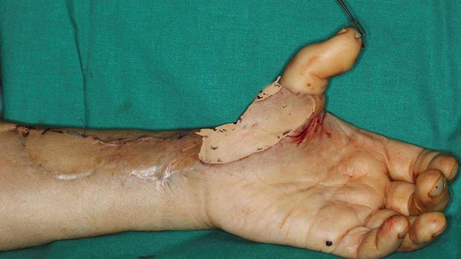 Un trasplante permite recuperar la funcionalidad en la mano con un dedo del pie