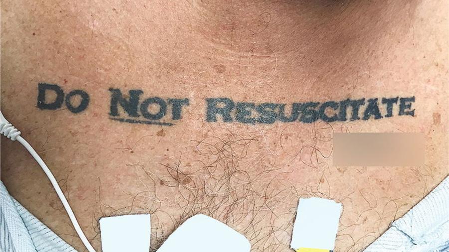 """Un hombre llegó inconsciente al hospital con un tatuaje que ponía """"no resucitar"""". Los médicos tuvieron que tomar una decisión"""