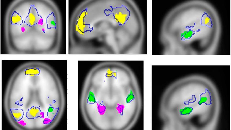 Descubren qué pasa en nuestros cerebros cuando tenemos un recuerdo