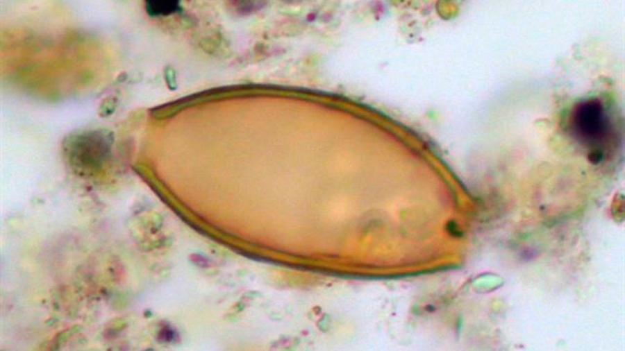 Heces antiguas revelan parásitos descritos por Hipócrates hace 2.500 años