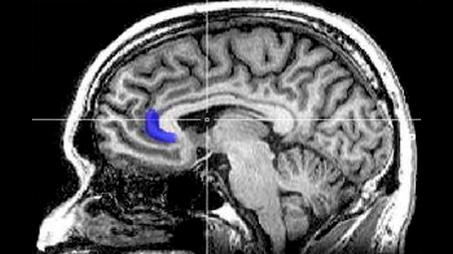 Descubren los mecanismos cerebrales del favoritismo