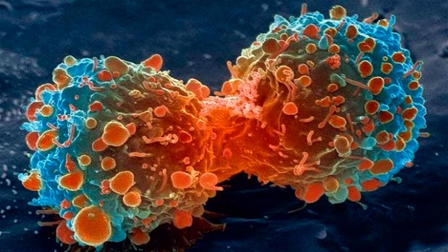 THOR, el gen de la 'materia oscura' a derrotar para vencer a muchos tipos de cáncer