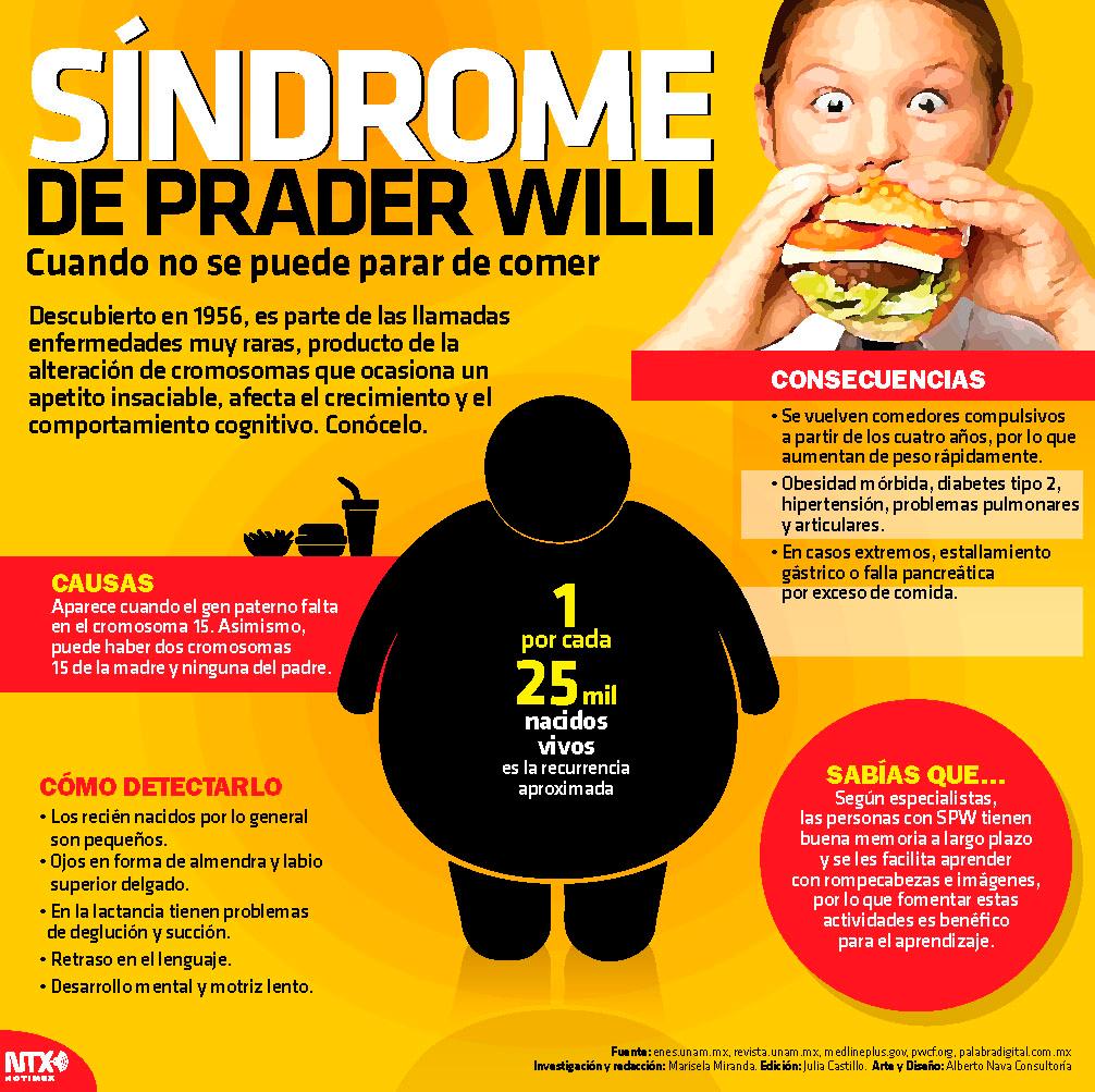 Síndrome de Prader Willi, cuando no se puede parar de comer