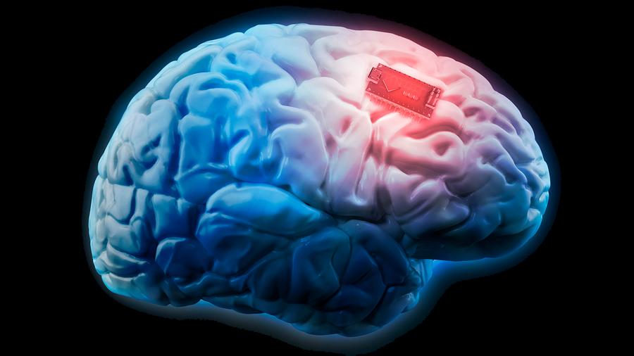 Implantes cerebrales para mejorar la memoria