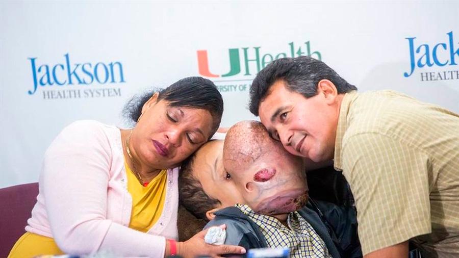 El conmovedor caso de un niño cubano de 14 años con un gigantesco tumor en la cara que será operado en EU
