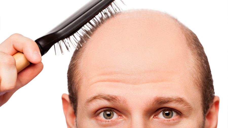 Científicos crean organoides que hacen crecer el cabello