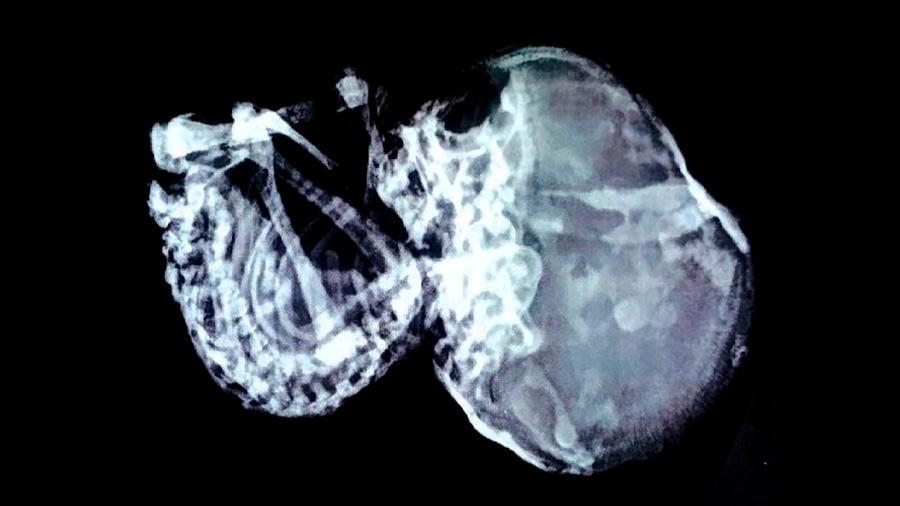 Descubrieron feto muerto en el estómago de un niño de 15 años