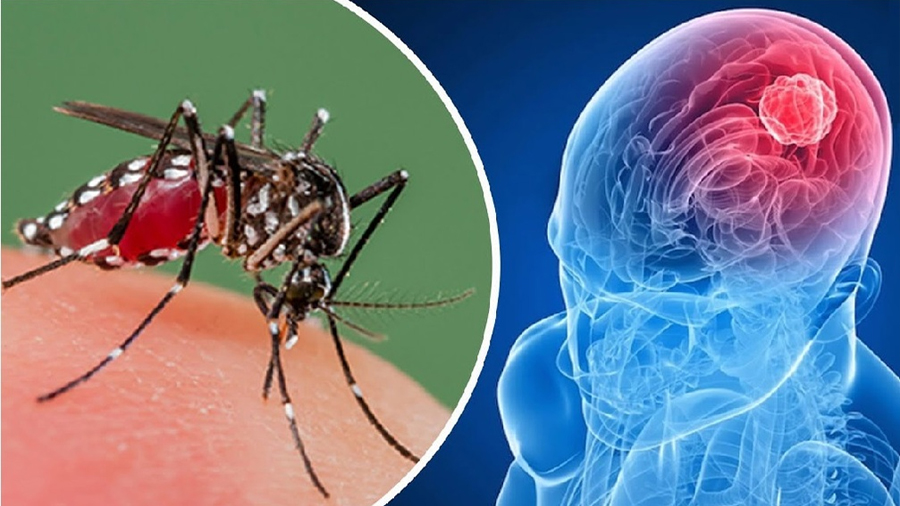Médicos brasileños proponen al virus del Zika para el tratamiento del cáncer cerebral