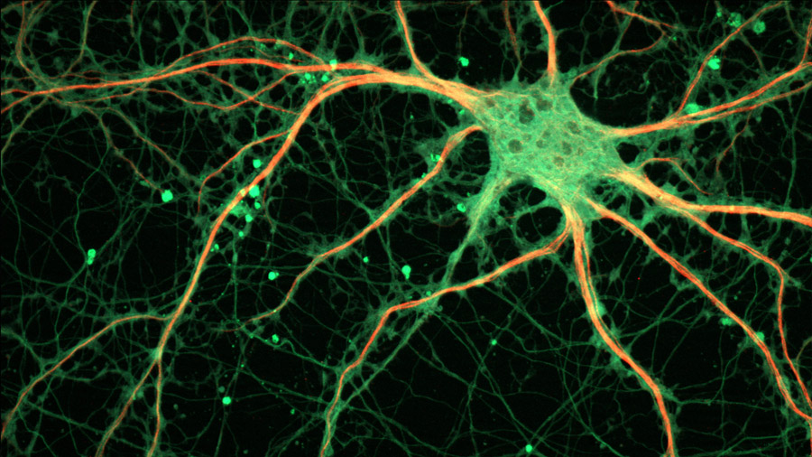 Cartografían por primera vez un microcircuito cerebral